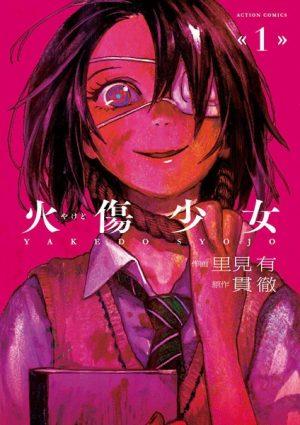 web-manga-cover-Yakedo-Shoujo-300x425 Yakedo Shoujo | Free To Read Manga!